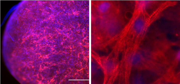 Cardiac myocytes cultured within PEG-fibrinogen hydrogels after several days; staining for α-Sarcomeric acti and DAPI